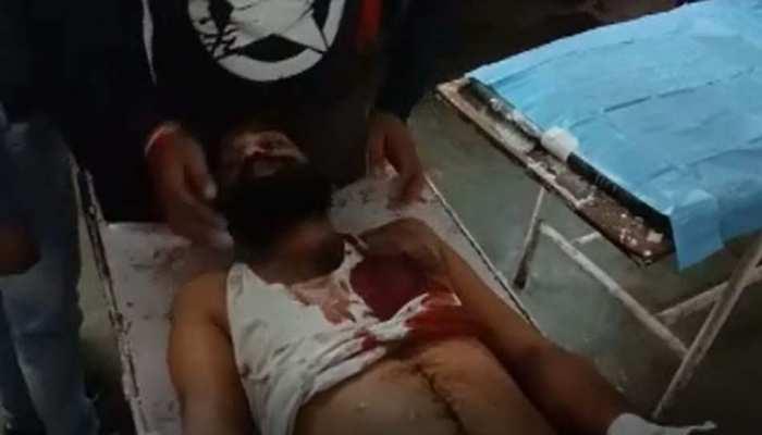 लॉकडाउन के side effect: पत्नी से झगड़ा हुआ तो कमरे के अंदर जाकर ड्राइवर ने खुद को मारी गोली