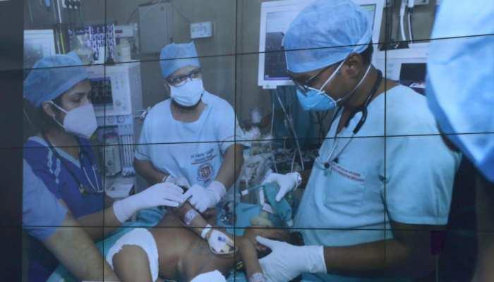 एक शरीर से जुड़े थे राम-श्याम, 7 घंटे के ऑपरेशन के बाद मिला नया जीवन