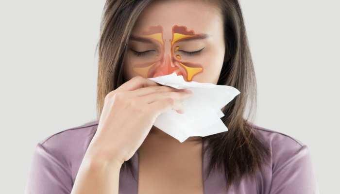 home remedies for sinus treatment