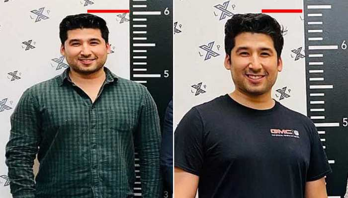 US Man increase height after Surgery, Cost Rs. 55 Lakh on Cosmetic Limb-Lengthening Surgery