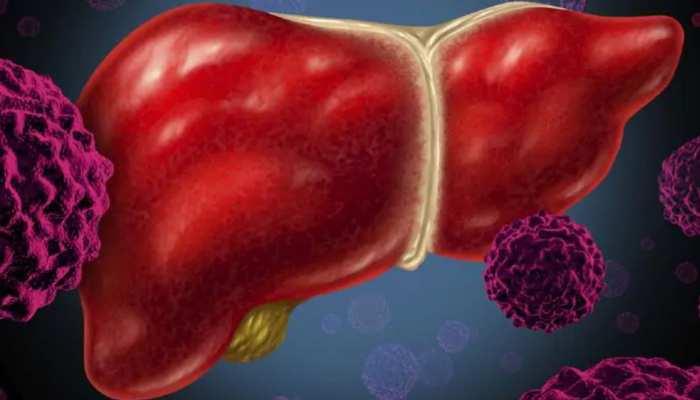 मोटे लोगों और डायबिटीज के मरीजों को Fatty Liver Disease होने का खतरा सबसे अधिक
