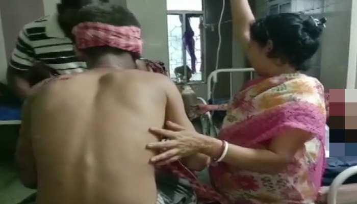 West Bengal के दक्षिण 24 परगना में Bomb Blast, BJP के 6 कार्यकर्ता गंभीर रूप से घायल