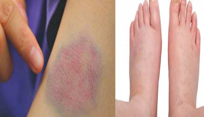 Blood Clot Signs: त्वचा के रंग में बदलाव से लेकर सूजन तक, खून का थक्का जमने के इन संकेतों को नजरअंदाज न करें