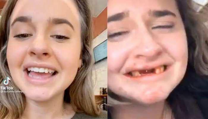 नशे में झूमकर Video बनवा रही थी लड़की, फिर हुआ कुछ ऐसा कि दांत बाहर आ गए, देखने वाले बोले 'OH MY GOD'