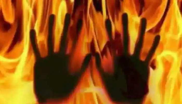 हजारीबाग में इंसानियत शर्मसार! अवैध संबंध के चलते पत्नी को केरोसिन छिड़क कर जलाया