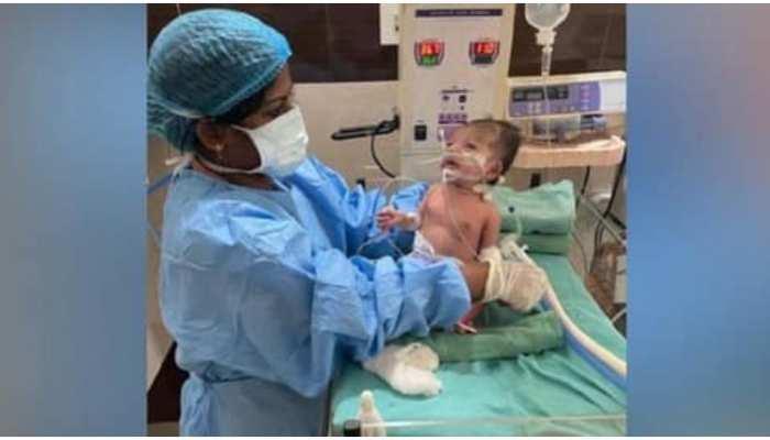 Good News: 10 दिन Ventilator पर रहने के बाद 1 महीने की बच्ची ने दी Coronavirus को मात