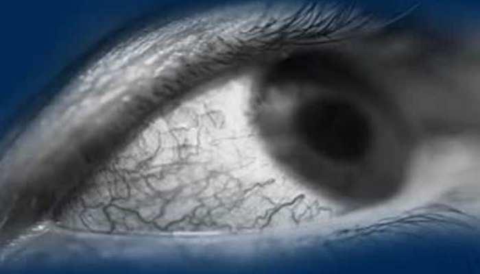 कोरोना मौत की नींद सुला रहा, ब्लैक फंगस आंखों की रोशनी छीन रहा, हैरानी वाली है NHM की रिपोर्ट