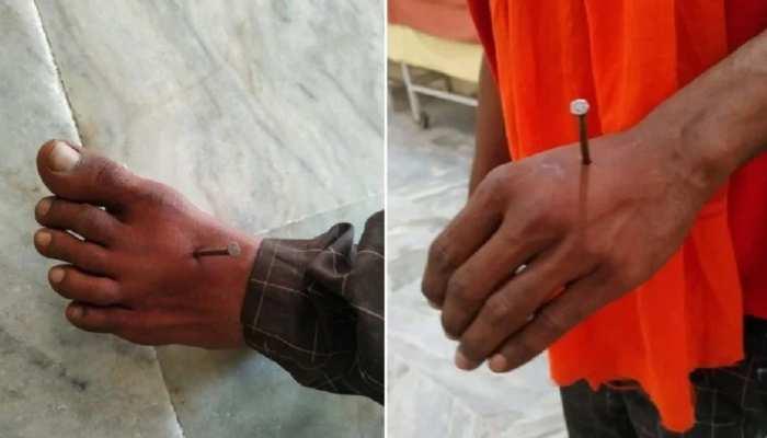 हाथ-पैर में कील ठोकने के मामले में नया मोड़, पुलिस पर आरोप लगाने वाले ने खुद बयां की सच्चाई