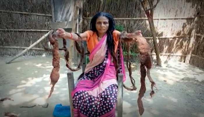 बिहार के बगहा में महिला ने लगाई सरकार से गुहार, कहा- बढ़ते बालों का कराइए इलाज