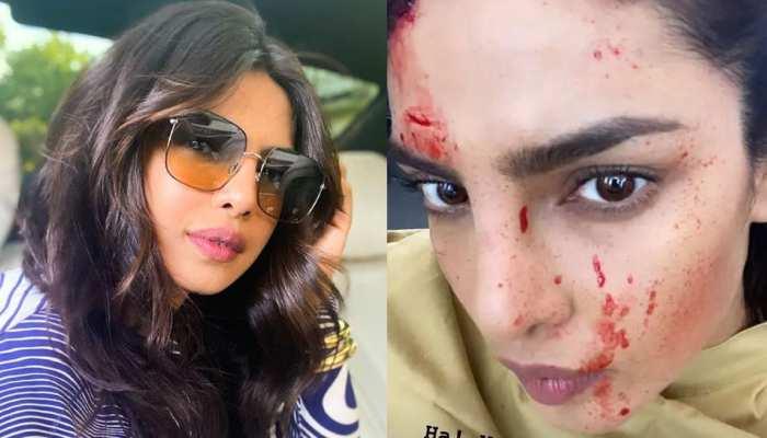Priyanka Chopra के चेहरे पर दिखे खून के छींटे! PHOTO देख फैंस परेशान