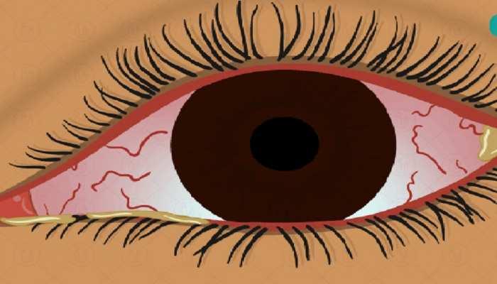 आंख में घुस गया हसुआ, अफसाना ने फिर भी नहीं हारी हिम्मत