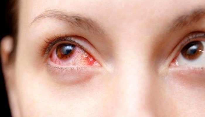 डॉक्टर ने बताया आई इन्फेक्शन, निकली गंभीर बीमारी; ये लक्षण दिखें तो हो जाएं सावधान